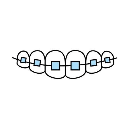 Diş teli hangi yaşlarda kullanılabilir?