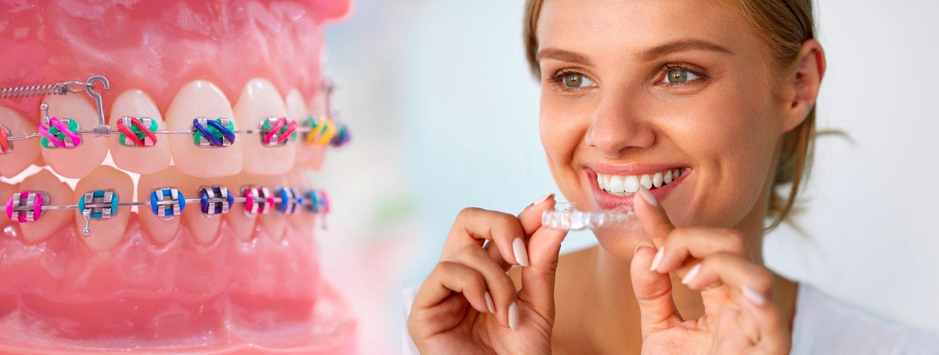 Ortodonti Diş teli çeşitleri