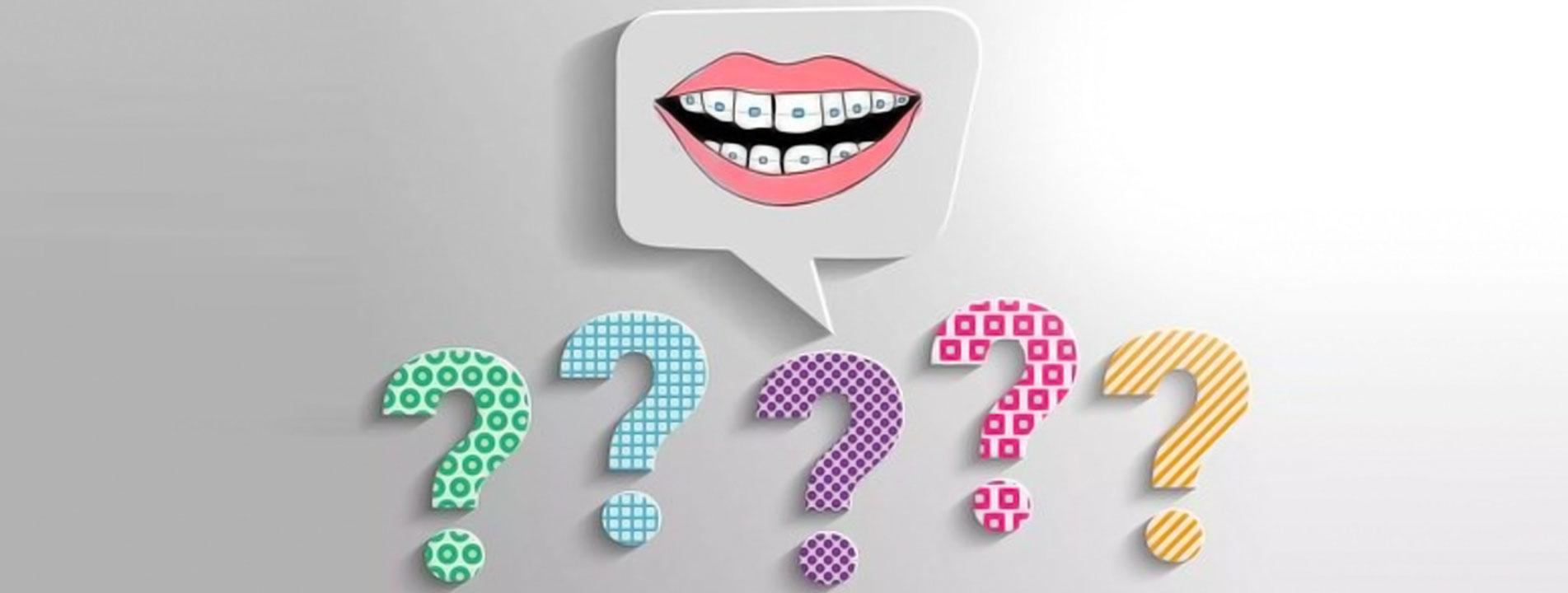 Ortodonti de Sıkça Sorulan Sorular