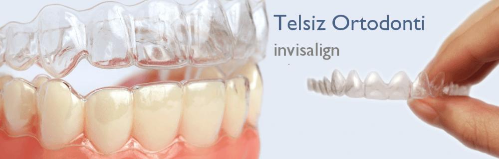 Telsiz Ortodonti (invisalign)